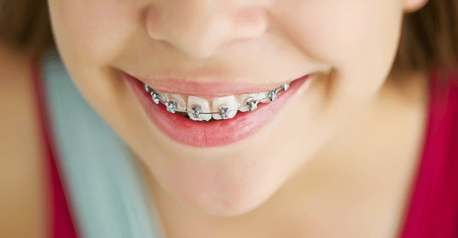 /upload/files/277/child-orthodontics-14142.png